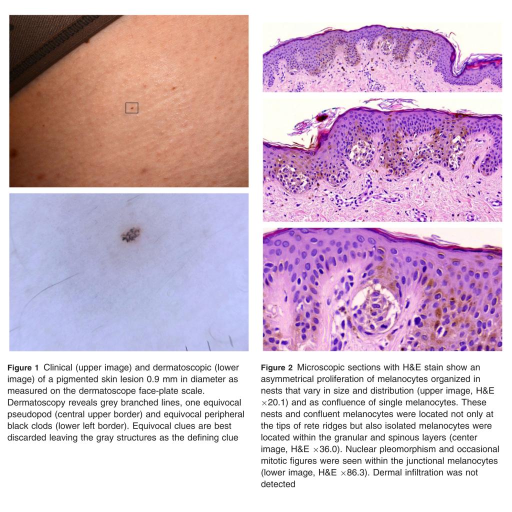 Fotofinder finds the smallest published melanoma on the planet
