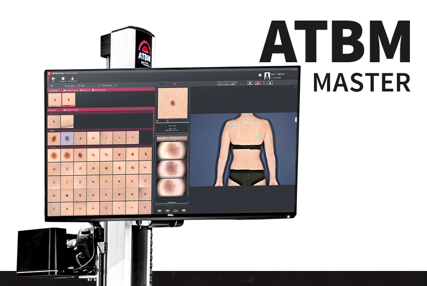 FotoFinder ATBM master