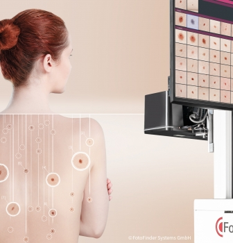 FotoFinder presents the next generation of systems for the early detection of skin cancer