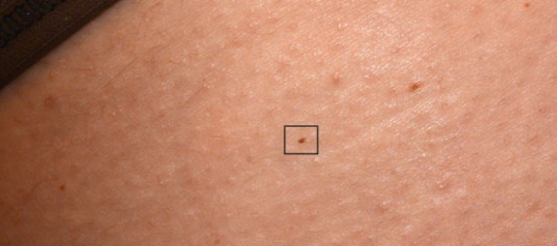 Fotofinder finds the World's smallest published melanoma